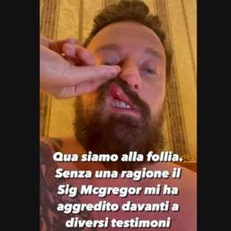 Mariano, Facchinetti denuncia:  «McGregor mi ha dato un pugno»   GUARDA IL VIDEO